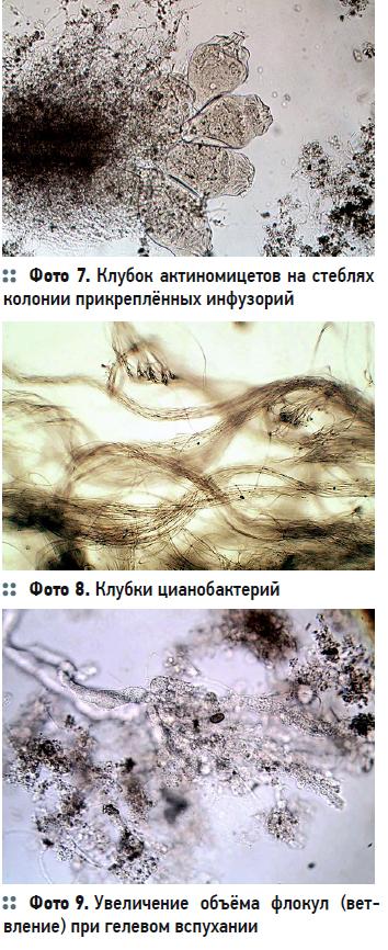 Гидробиологические аспекты процесса биологической очистки с нитрификацией и симультанной денитрификацией (БНЧСД). 2/2020. Фото 6